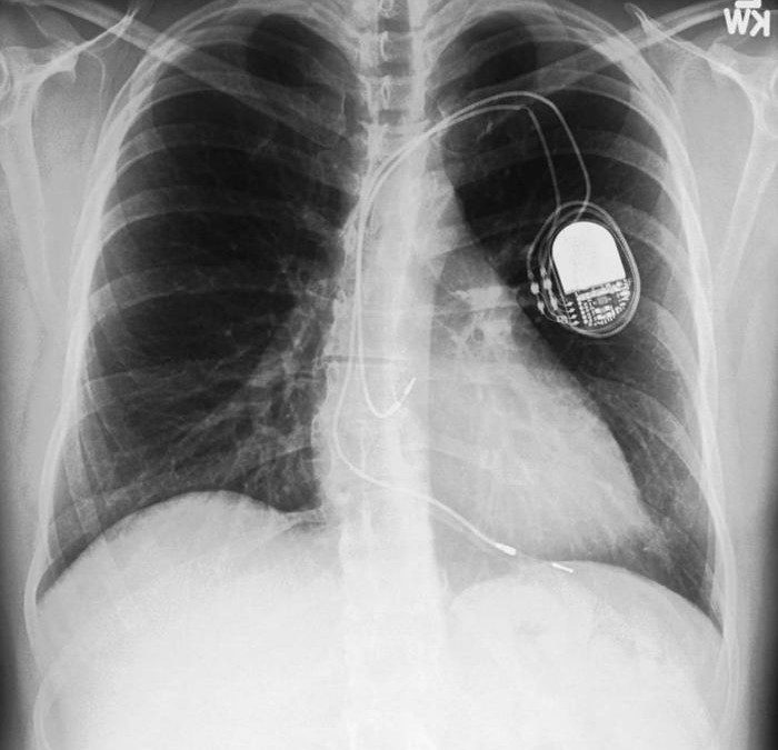 IMPROVING ACCESS AND SAFETY IN MRI FOR PATIENTS WITH IMPLANTABLE CARDIAC DEVICES