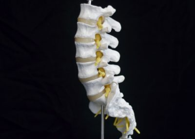 1_Model of Lumbar Spine showing L1 to L5 exiting nerve root